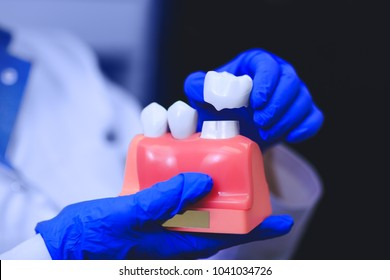 Dental implant in the hands of real doctor - model of teeth, closeup. Tooth restoration. Installation of the dental implant. Dental prostheses. Artificial implant teeth. Oral care of implants.
