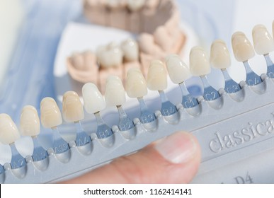 dental implants are color checked in a dental laboratory
