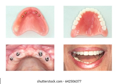 dental implants  and denture  of upper jaw