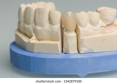 Dental imprint with artificial dentition in a dental laboratory ready for use