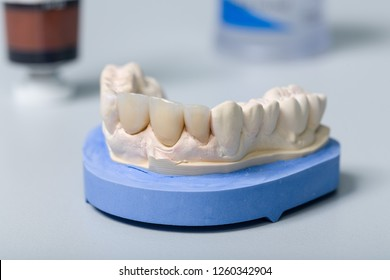 Dental imprint with artificial dentition and tools in a dental laboratory