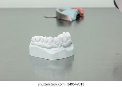 dental imprint in a dental laboratory