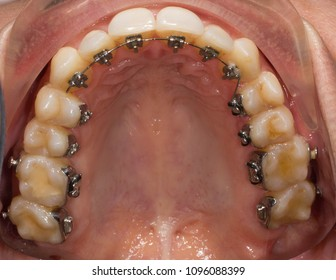 Dental lingual braces