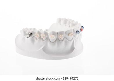 Dental lower jaw bracket braces model isolated on white