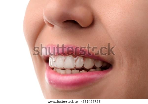 歯科医療。非表示のブレース。シリコーントレーナー