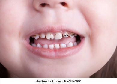 Dental medicine and healthcare - baby teeth with caries