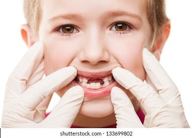 Dental medicine and healthcare - child patient open mouth showing first baby milk or temporary teeth fall out