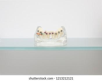 dental metal braces teeth retainer