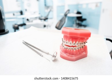dental model with braces - Teeth orthodontic dental model with dental braces in dentist clinic
