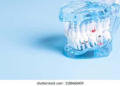 Dental model in oral health care concept.