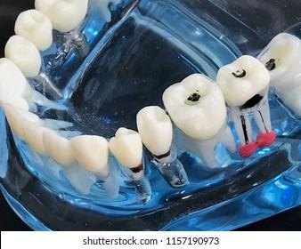 Dental model show tooth and gum problem.