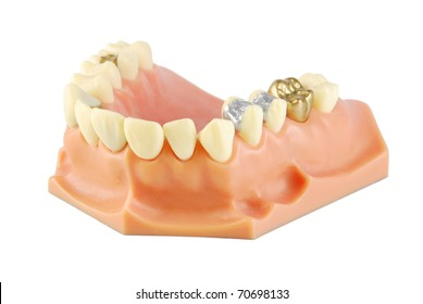 dental model showing different types of treatments on white (gold crown, porcelain veener, gold inlays, amalgam and composite fillings)