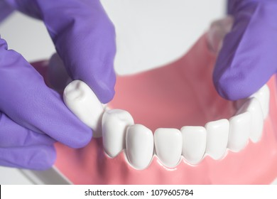 Dental model teeth is used to demonstration of tooth extraction by doctors