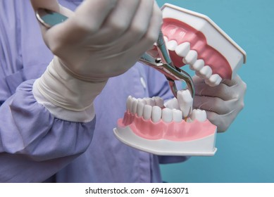 The dental model is used to Demonstration of tooth extraction by doctors. Blue background.