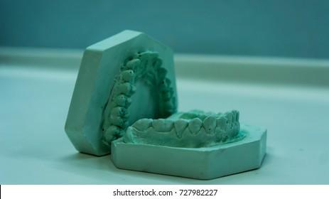 Dental Mold Stock Photo (Edit Now) 727982209 - Shutterstock