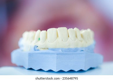 Dental plaster mold with open mouth picture in the background
