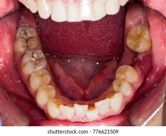 Dental problems - occlusal view ol lower jaw.