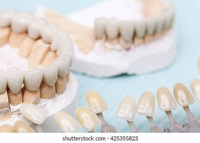 dental prostheses and ceramic covers for teeth
