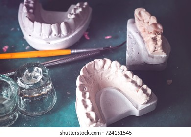 Dental prosthesis, artificial tooth. Photo of artificial teeth made in the dental laboratory.
