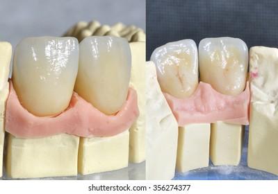 Dental prosthesis, upper incisors