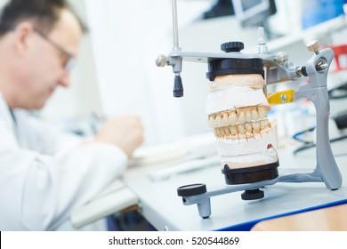 dental prosthesis work
