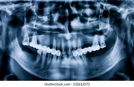 Dental radiography of the denture, maxilla and mandible
