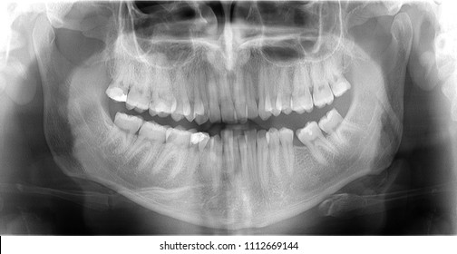 Dental radiography teeth scan of adult male