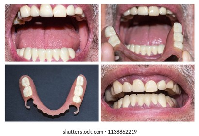 Dental rehabilitation with lower flexible nylon denture, before and after treatment. Removable dentures flexible, devoid of nylon, hypoallergenic exempt from monomer