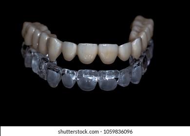 Cad Cam Dental Images, Stock Photos & Vectors | Shutterstock