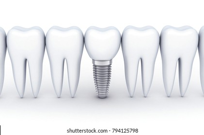 Dental row and one implant on white background. 3d illustration