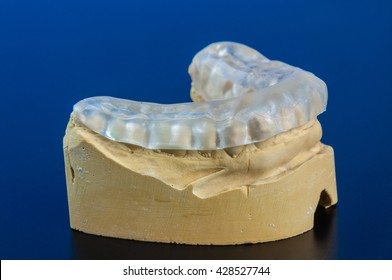 Dental splint to prevent bruxism
