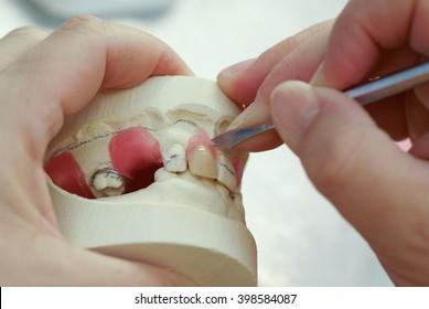 Dental technician making new dentures with plaster model