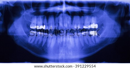 Dental teeth fillings, gum disease gingivitis dentists medical tooth x-ray test scan image.
