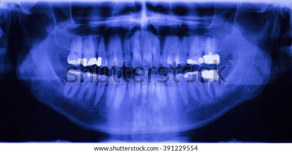 Dental teeth fillings, gum disease gingivitis dentists medical tooth x-ray test scan image.