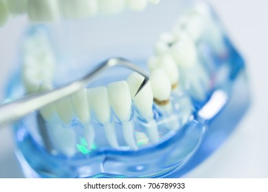 Dental teeth, mouth, gums dentists teaching model showing each tooth and roots toothpick cleaning.