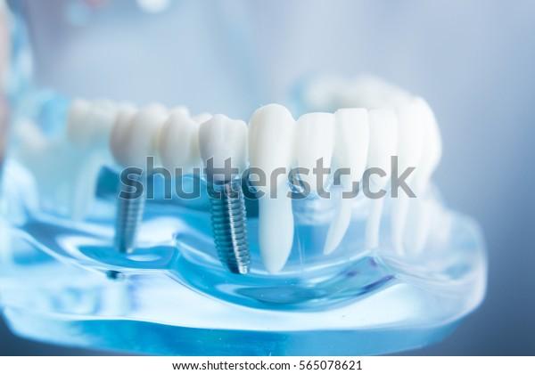 Zahnzahnarztlehrer lernen Modell, das Zähne, Wurzeln, Zahnfleisch, Zahnerkrankungen, Zahnverfall und Plaque zeigt.