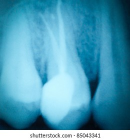 dental tooth x-ray film of root canal therapy