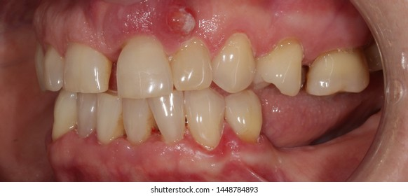 Gum Abscess Treatment Images Stock Photos Amp Vectors