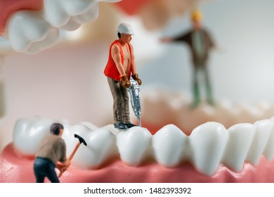 dental treatment concept - miniature figurines of construction workers on teeth model