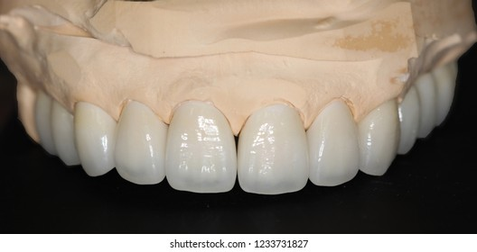 Dental treatment with total porcelain crowns and veneers