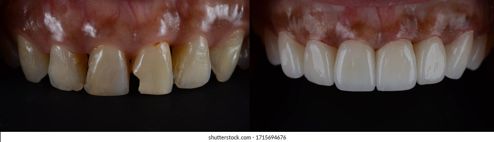 Dental veneer before and after. Smile makeover with dental ceramic veneers treatment, result in clean, perfect, youth and white teeth smile.
