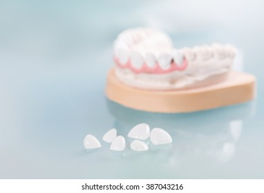Dental veneers are lying on a blue background in the laboratory.