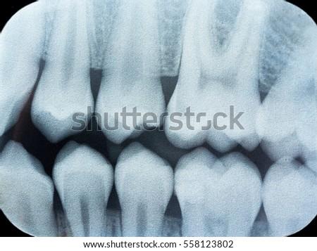 Dental X Ray Teeth Tooth Radiography Foto de stock (editar ahora ...