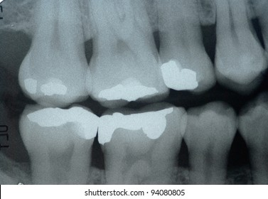 Dental x-ray  ( Bite wing technic ) for check dental caries