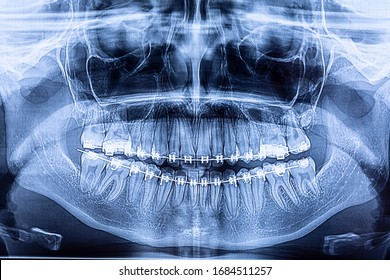 Dental x-ray with braces. Radiography for teeth straightening and dental structures research concept.