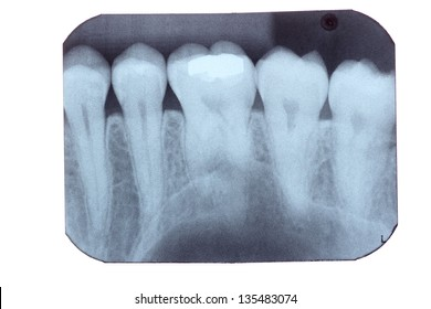 a dental x-ray film isolated on white