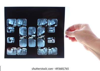 Dental X-ray image in the doctor woman hand. Isolated on white