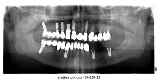 Dental x-ray with periodontitis problems, decayed teeth,implant