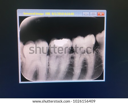 dental xray show normal wisdom tooth stock photo edit now