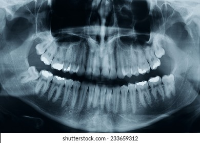 Dental xray shows 3 wisdom tooths. there is one critical in the lower part of the picture, this is a high resolution, photo